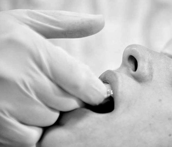 Odontoiatria, malocclusioni e osteopatia